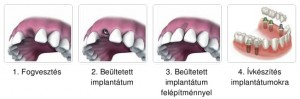 implantacios_1